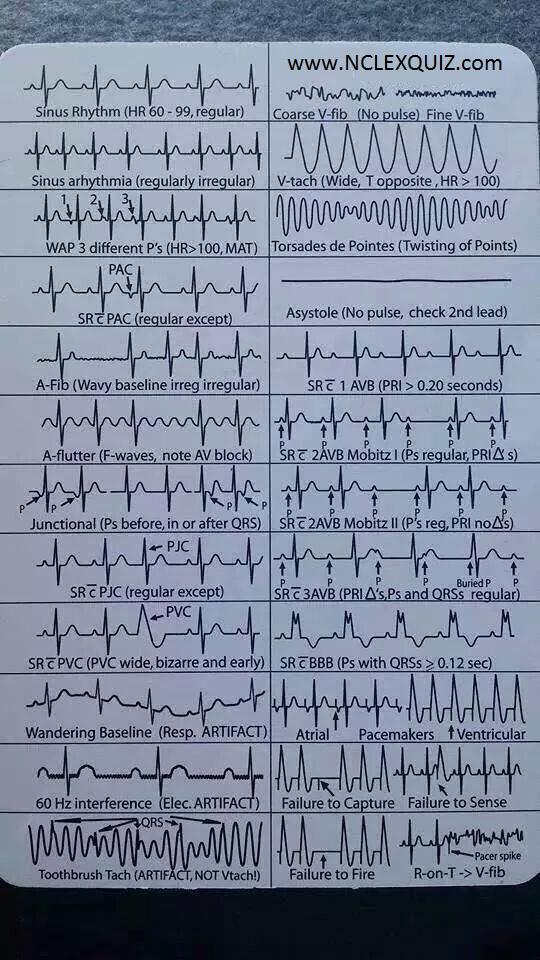 EKG Heart Rhythms Cheat Sheet NCLEX Quiz