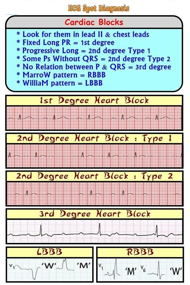 ECG/EKG Spot Diagnosis: Cardiac Rhythms Heart Blocks - NCLEX