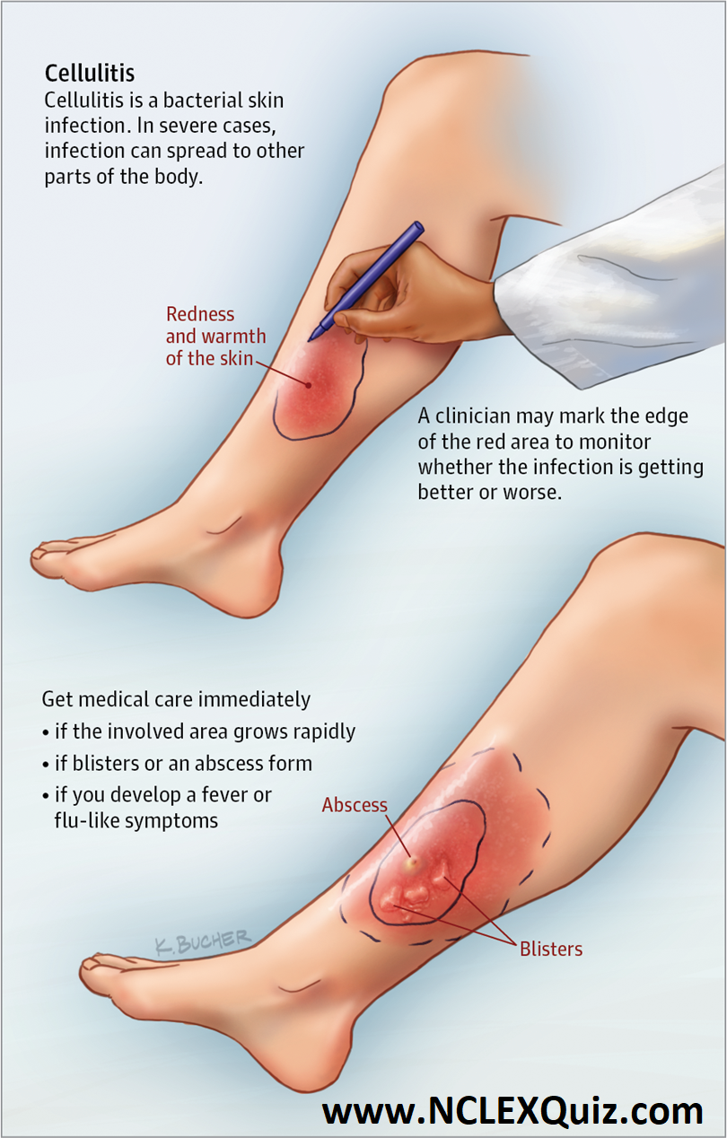 Nursing Study Guide: Cellulitis