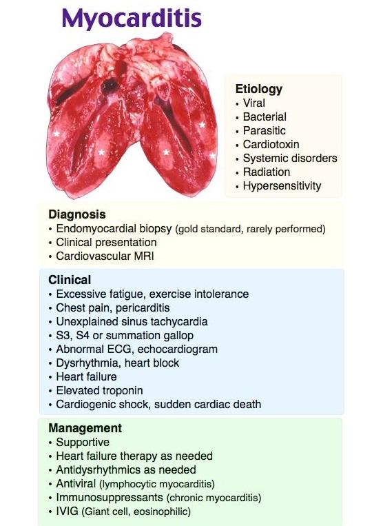 Myocarditis Disease with Causes, Symptom and Nursing Intervention