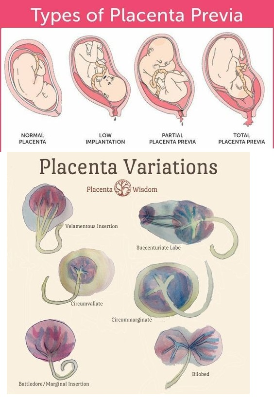 Placenta variations and what they look like
