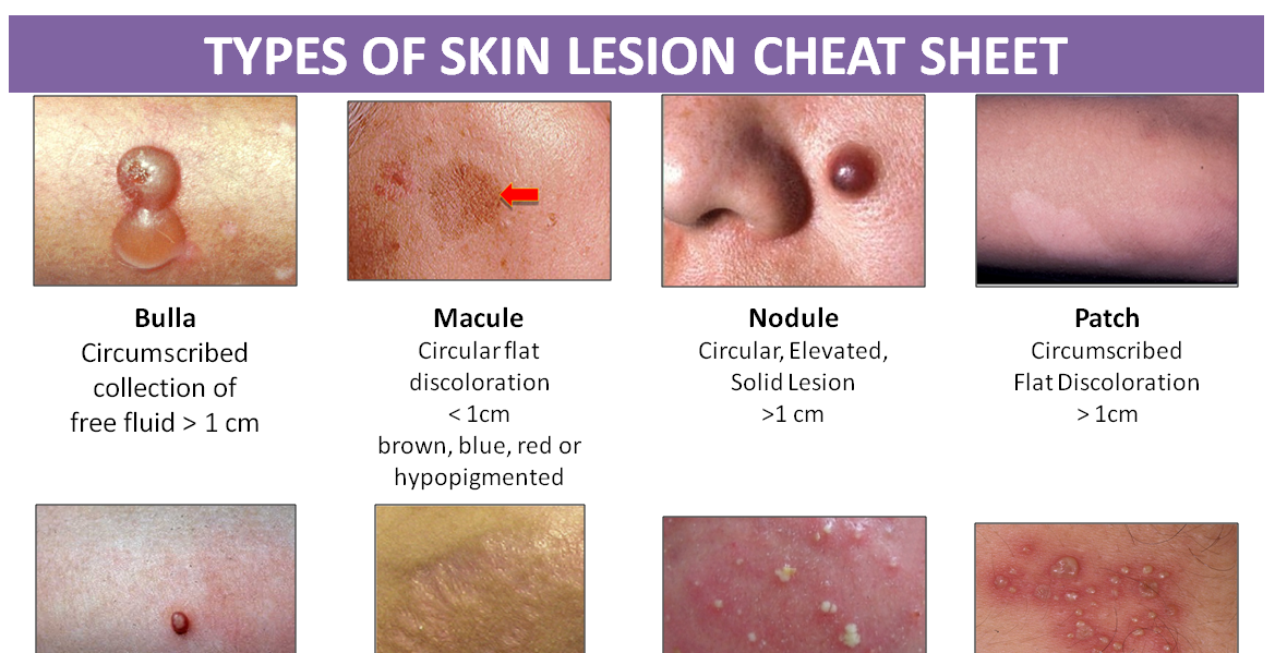 Types Of Skin Lesion Cheat Sheet