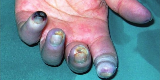raynaud-phenomenon