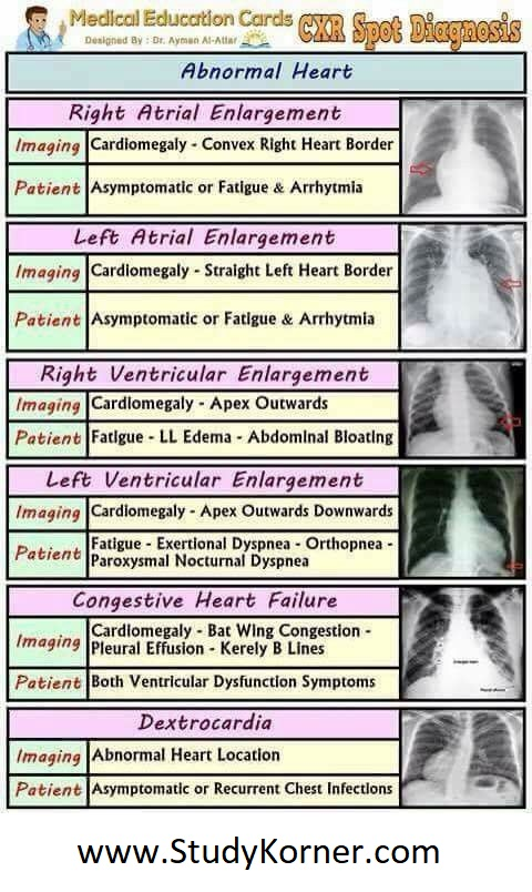 Chest X-Ray Spot Diagnosis Chart: abnormal Heart Radiology Cardiology Emergency Nursing