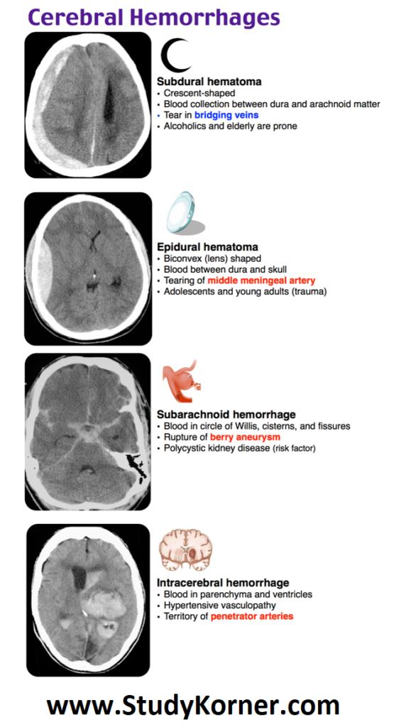 Cerebral Hemorrhages Neurological Assessment Med School