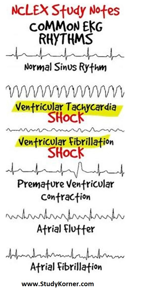 EKG ECG for Nursing Students How To Read An Electrocardiogra